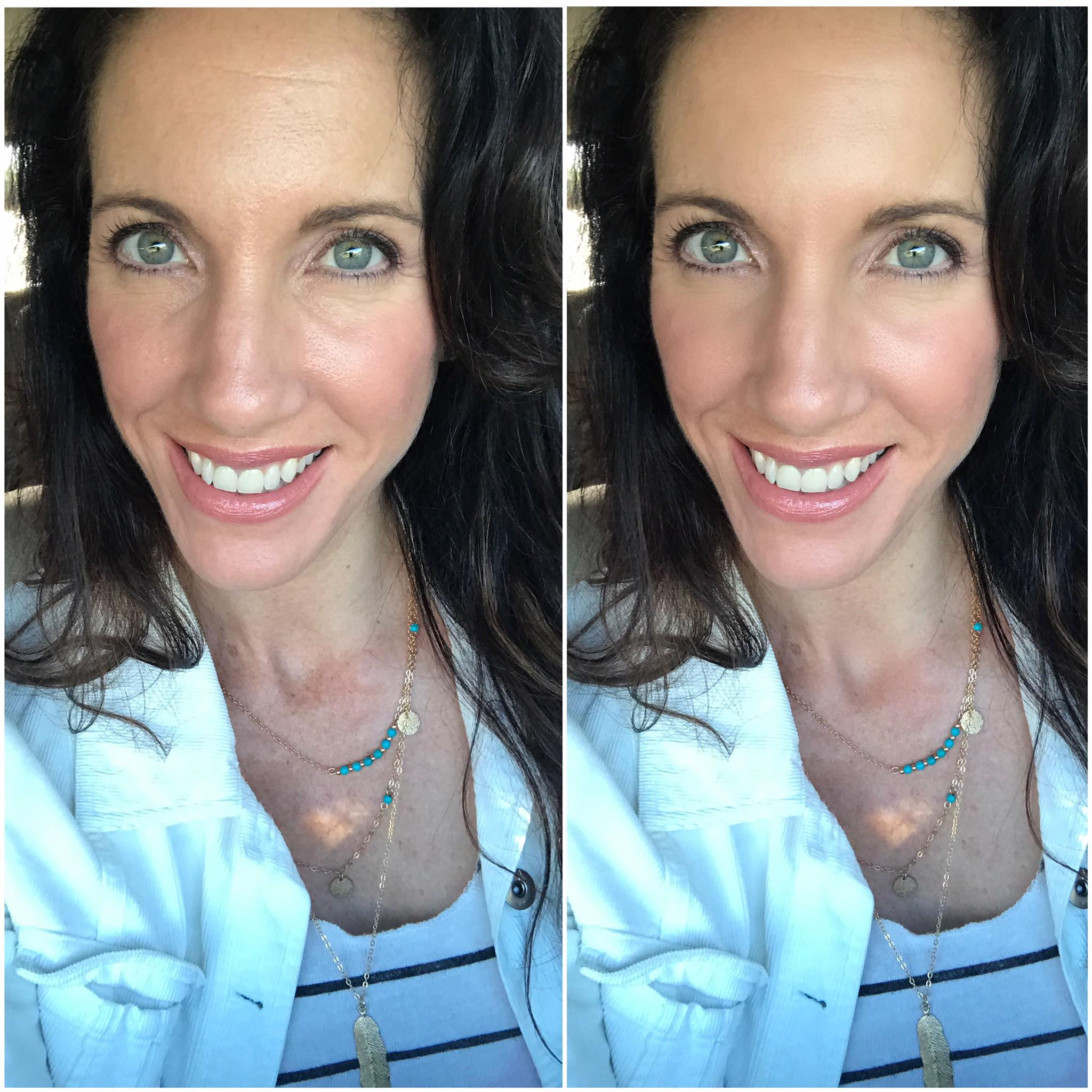 before after skincare over 40